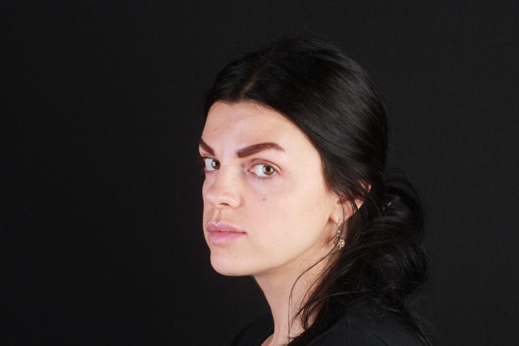 Анна Педро - пациентка микрохирургии Давида Назаряна