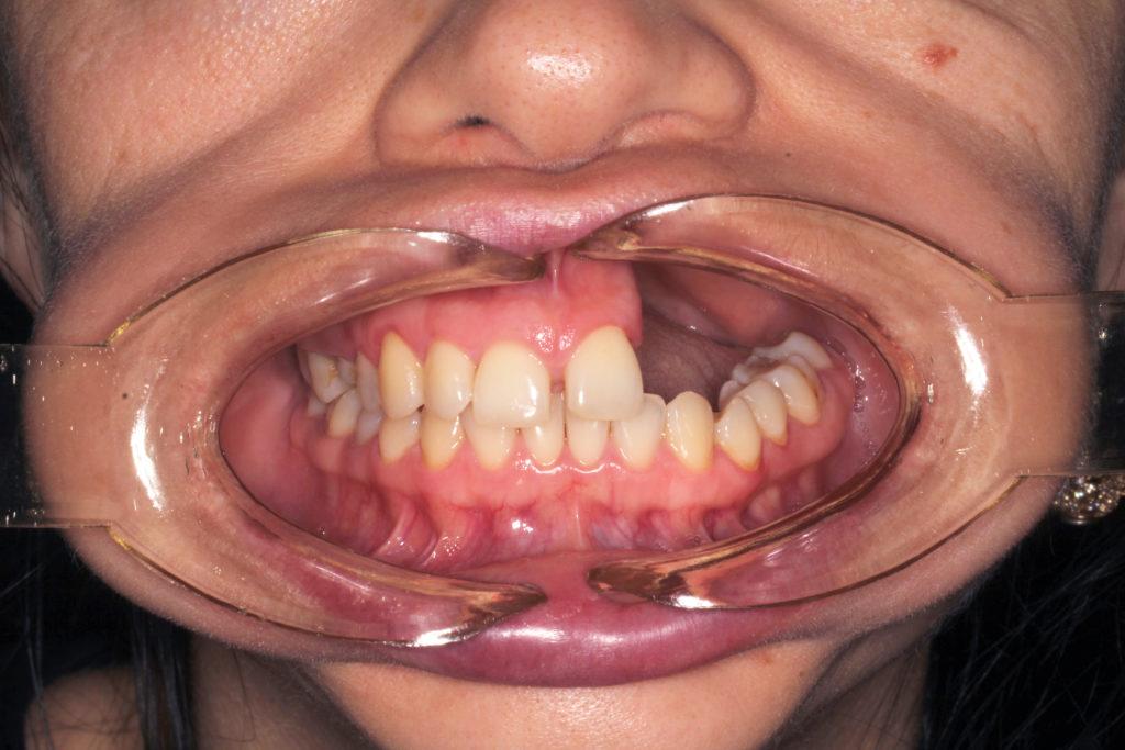 Дефект верхней челюсти слева - до операции (изображение 2))