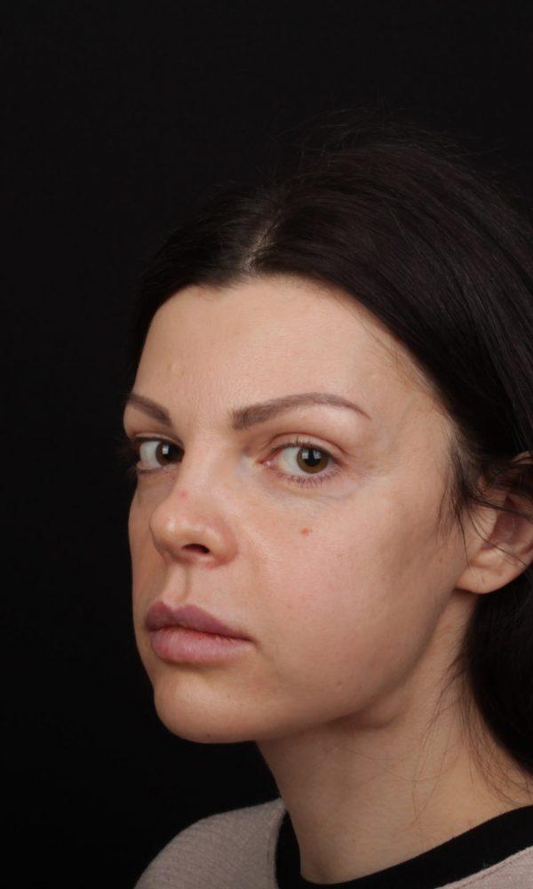 Фото Анны Педро после операции и реабилитации - полупрофиль