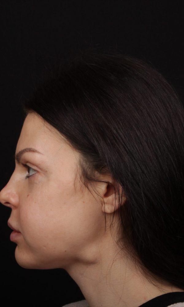 Фото Анны Педро после операции и реабилитации - профиль