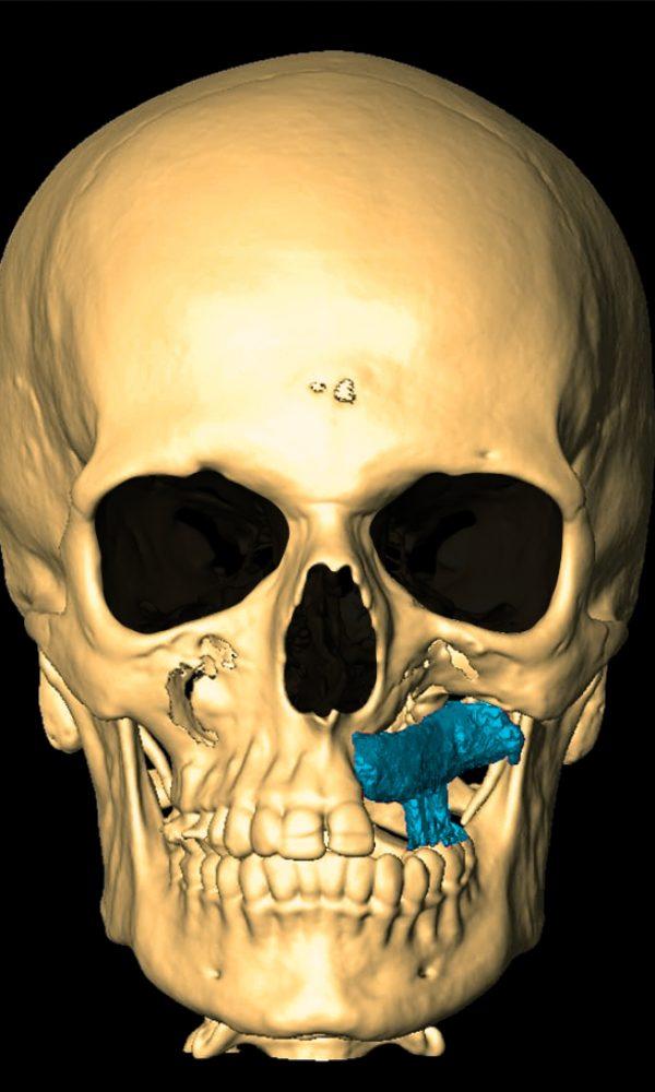 Снимок анфас после операции: Анна Педро
